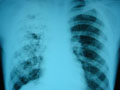 Поширення туберкульозу в Україні неможливо зупинити лише зусиллями медичної галузі, - експерт